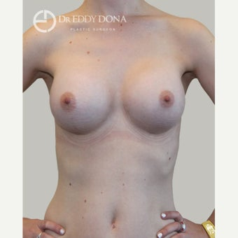 18-24 year old woman treated with Breast Augmentation after 1687395