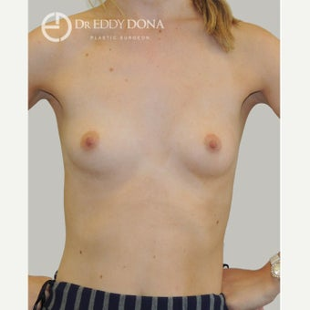 18-24 year old woman treated with Breast Augmentation before 1687395