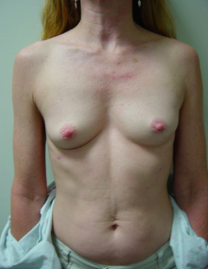 Breast Implant Reconstruction before 1064770