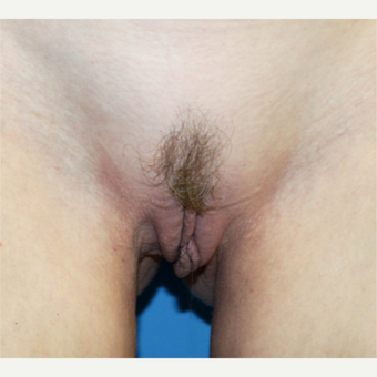 18-24 year old woman treated with Labiaplasty before 3208691