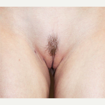 18-24 year old woman treated with Labiaplasty after 3208691