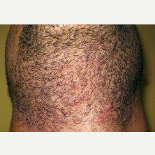 35-44 year old man treated with Laser Hair Removal