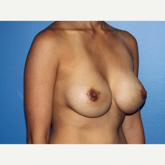 35-44 year old woman treated with Breast Implant Revision after 3366895