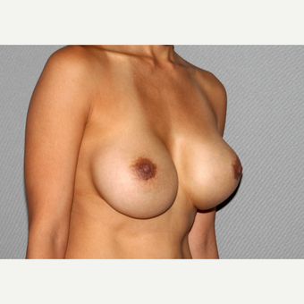 35-44 year old woman treated with Breast Implant Revision before 3366895