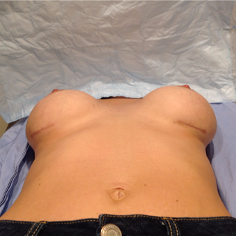 25-34 year old woman treated with Breast Implant Revision after 3075224