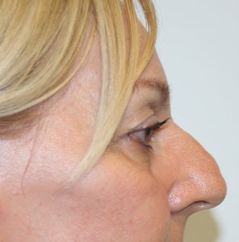 60 year old woman status post Rhinoplasty 1677083