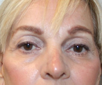 60 year old woman status post Rhinoplasty after 1677083