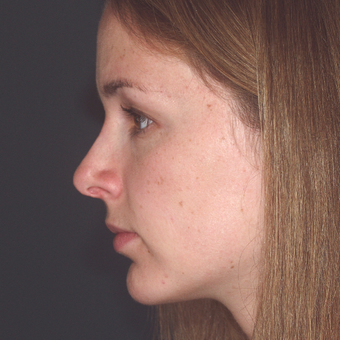 The woman did not like the projection of her nose. Nasal projection looks worse due to a weak chin after 3679399