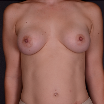 25-34 year old woman treated with Breast Implants after 3738124