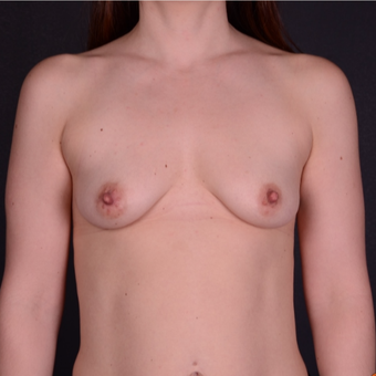 25-34 year old woman treated with Breast Implants before 3738124