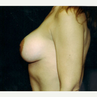 35-44 year old woman treated with Breast Augmentation after 3236236