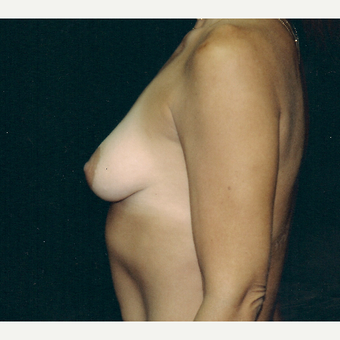 35-44 year old woman treated with Breast Augmentation before 3236236