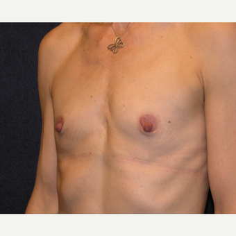 45-54 year old woman treated with Breast Augmentation before 3454876
