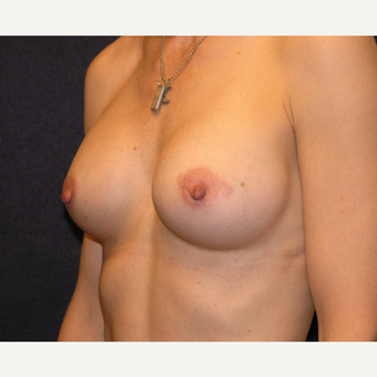 45-54 year old woman treated with Breast Augmentation after 3454876