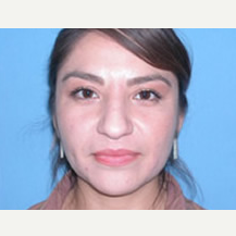 25-34 year old woman treated with Rhinoplasty before 3742982