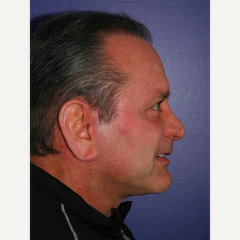 64 year old man treated with Facelift after 3710826