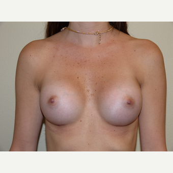 Breast Implants after 3807036