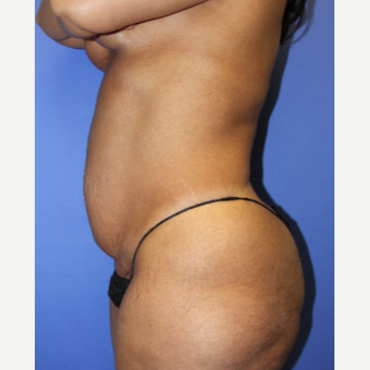 45-54 year old woman treated with Tummy Tuck before 3295305