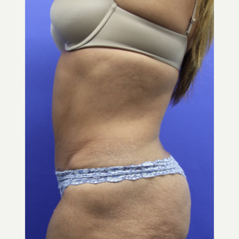 45-54 year old woman treated with Tummy Tuck after 3295305