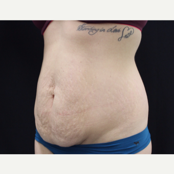 25-34 year old woman treated with Tummy Tuck before 3103113