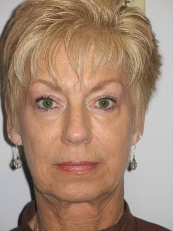 62 Year Old Woman with Mini-Facelift before 903466