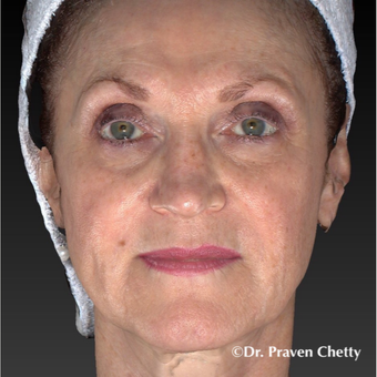 55-64 year old woman treated with Juvederm before 3426319
