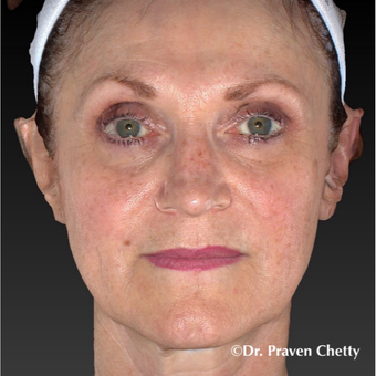 55-64 year old woman treated with Juvederm after 3426319