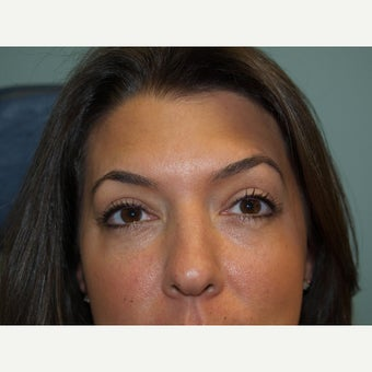 35-44 year old woman treated with Eyelid Surgery after 1648942