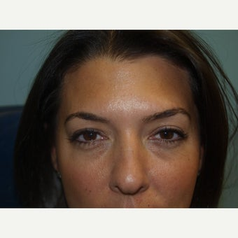 35-44 year old woman treated with Eyelid Surgery before 1648942