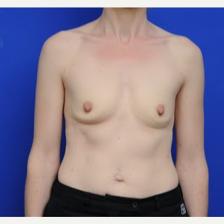 35-44 year old woman treated with Breast Augmentation before 3200428