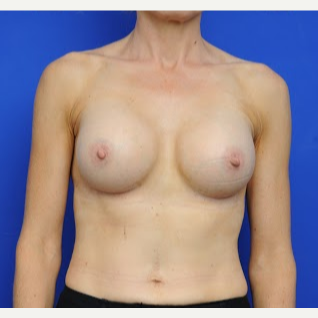 35-44 year old woman treated with Breast Augmentation after 3200428