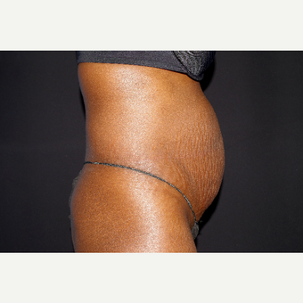 35-44 year old woman treated with Tummy Tuck before 3741814