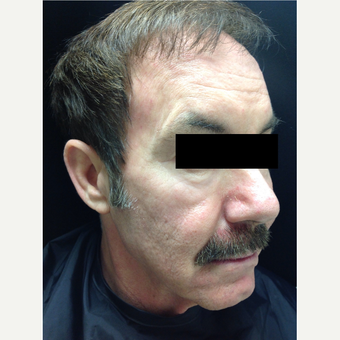 55-64 year old man treated with Voluma before 3784412