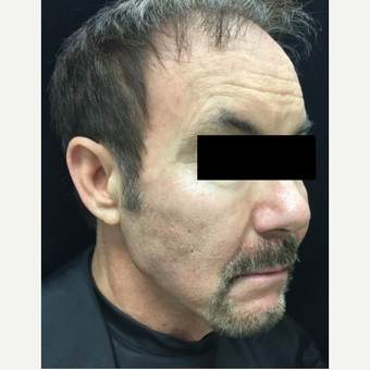 55-64 year old man treated with Voluma after 3784412