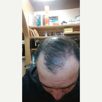 45-54 year old man treated with Hair Transplant after 3618625