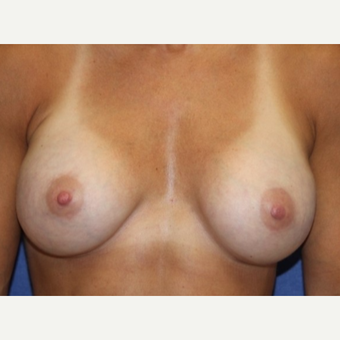 43 year old woman with a Breast Augmentation using Ideal Implants after 3104485