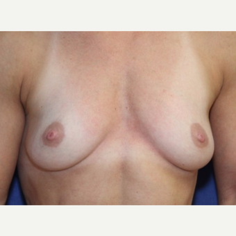 43 year old woman with a Breast Augmentation using Ideal Implants before 3104485