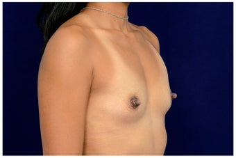 25-34 year old woman treated with Sientra Breast Implants before 1676547