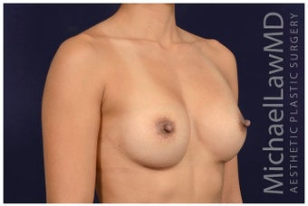 25-34 year old woman treated with Sientra Breast Implants after 1676547