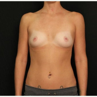 25-34 year old woman treated with Mentor Breast Implants before 2372597