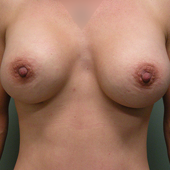35-44 year old woman treated with Mentor Breast Implants after 3536697