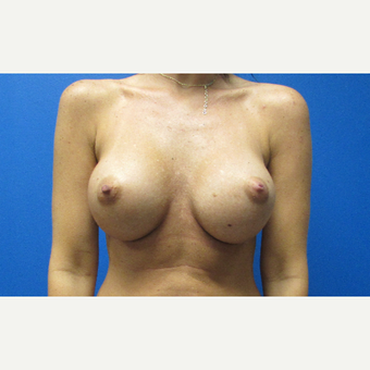 400cc high profile silicone gel breast implants after 3697301