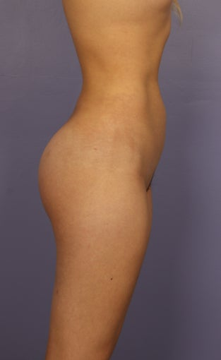 Buttocks Augmentation after 1325193