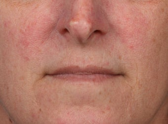 45-54 year old woman treated with Lip Augmentation before 3006026