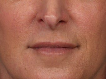 45-54 year old woman treated with Lip Augmentation after 3006026