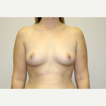 25-34 year old woman treated with Breast Augmentation before 1815575