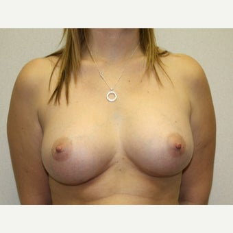 25-34 year old woman treated with Breast Augmentation after 1815575