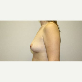 25-34 year old woman treated with Breast Augmentation 1815575