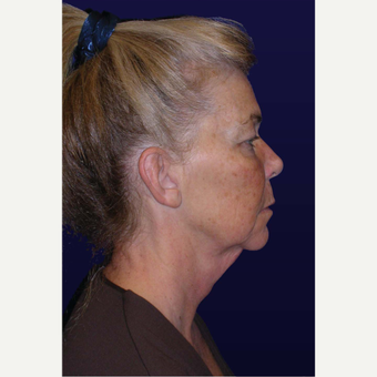 55-64 year old woman treated with Facelift before 3439352
