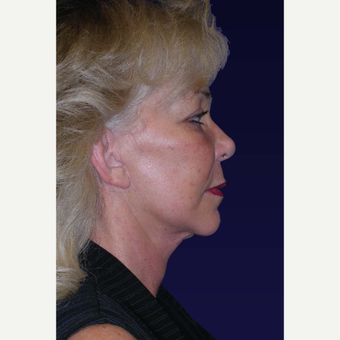 55-64 year old woman treated with Facelift after 3439352
